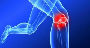 How to prevent an ACL injury